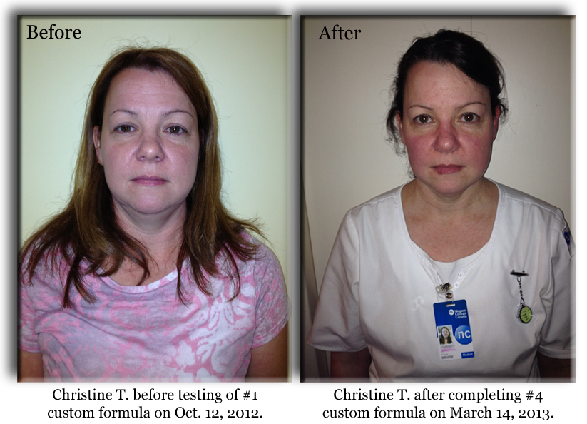 Christine T. before and after photos